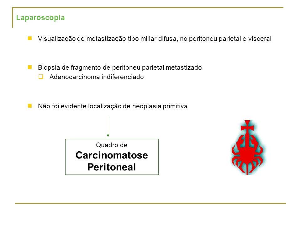 Carcinomatose Peritoneal