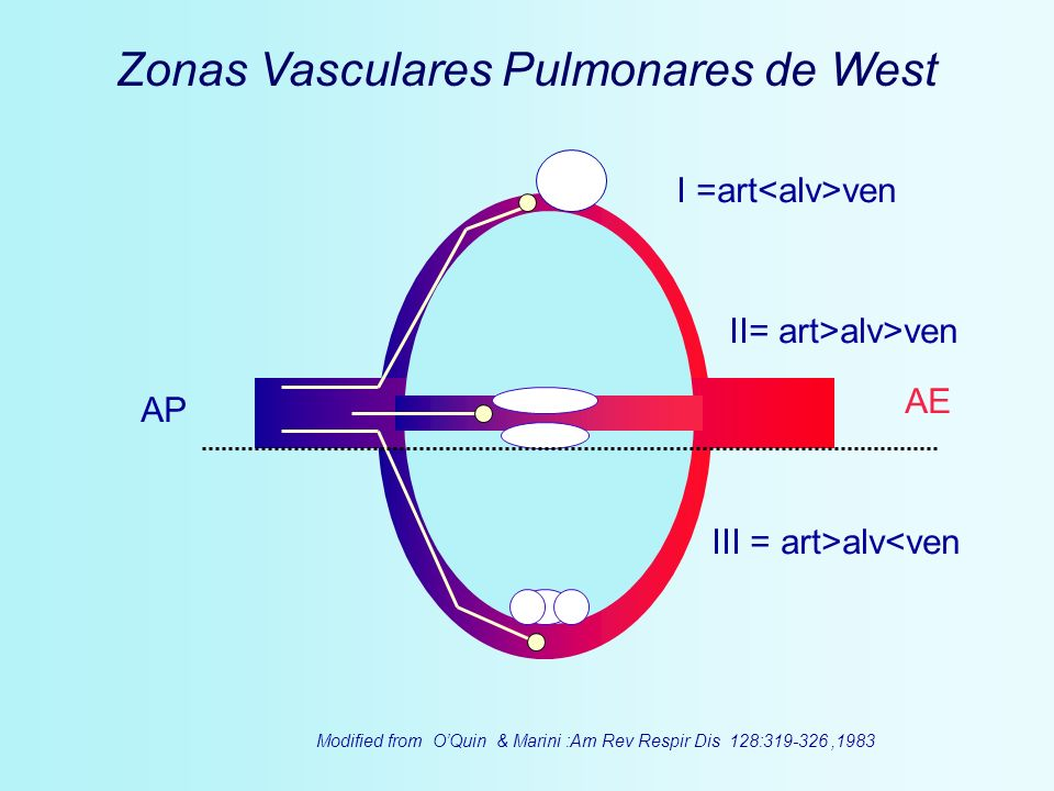 Zonas Vasculares Pulmonares de West