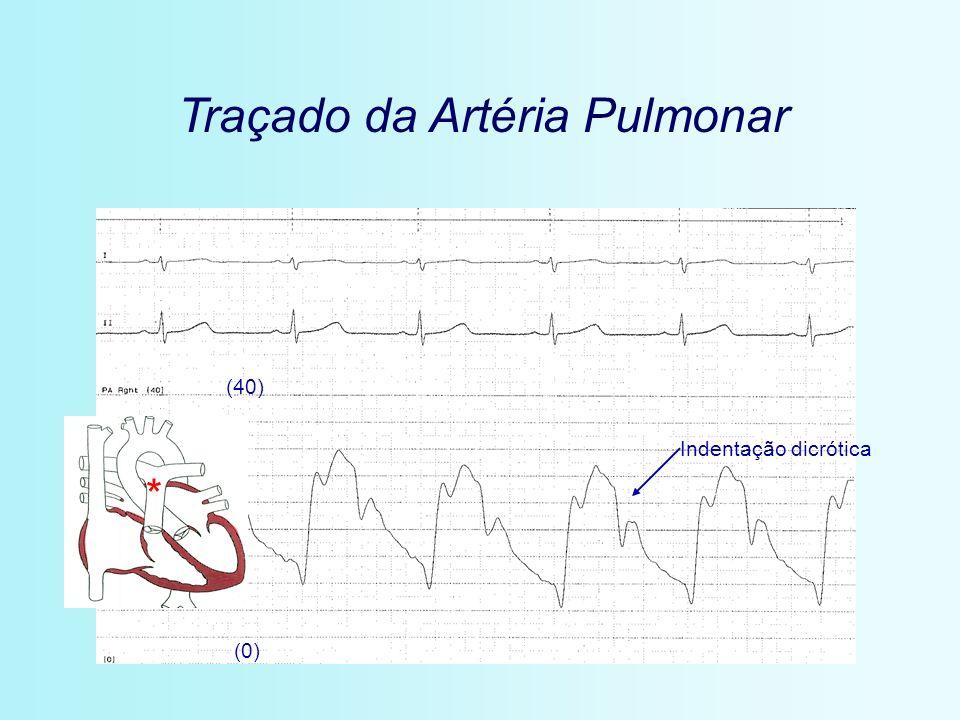 Traçado da Artéria Pulmonar