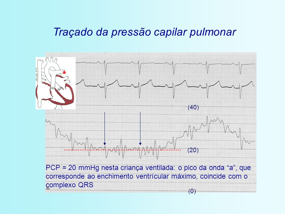Traçado da pressão capilar pulmonar