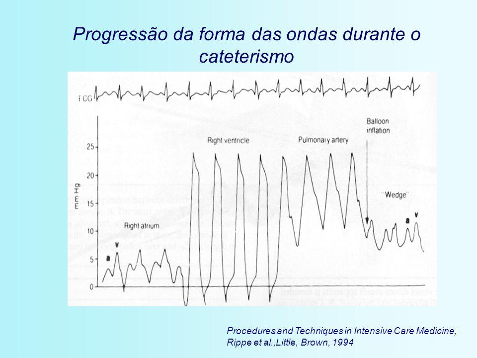 Progressão da forma das ondas durante o