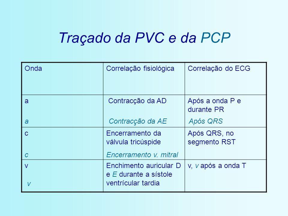 Traçado da PVC e da PCP Onda Correlação fisiológica Correlação do ECG