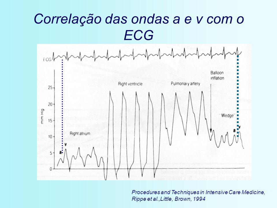 Correlação das ondas a e v com o ECG