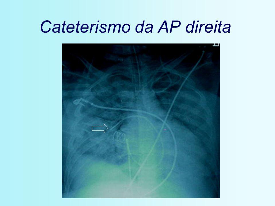 Cateterismo da AP direita