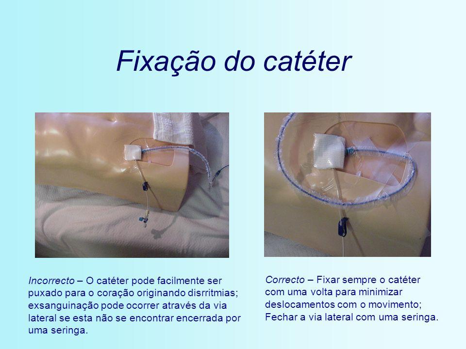 Fixação do catéter