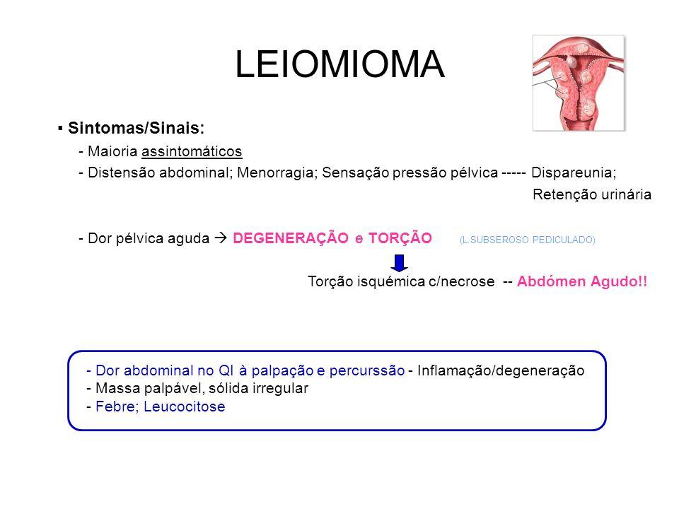 LEIOMIOMA ▪ Sintomas/Sinais: - Maioria assintomáticos