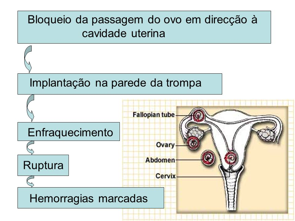 Bloqueio da passagem do ovo em direcção à cavidade uterina