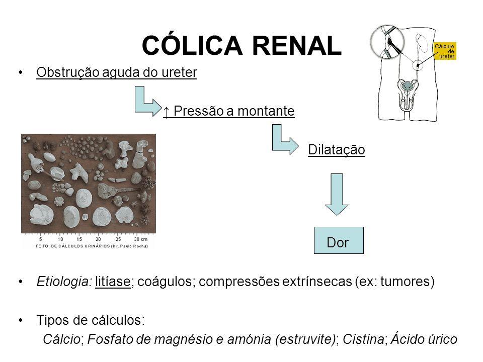 CÓLICA RENAL Obstrução aguda do ureter ↑ Pressão a montante Dilatação