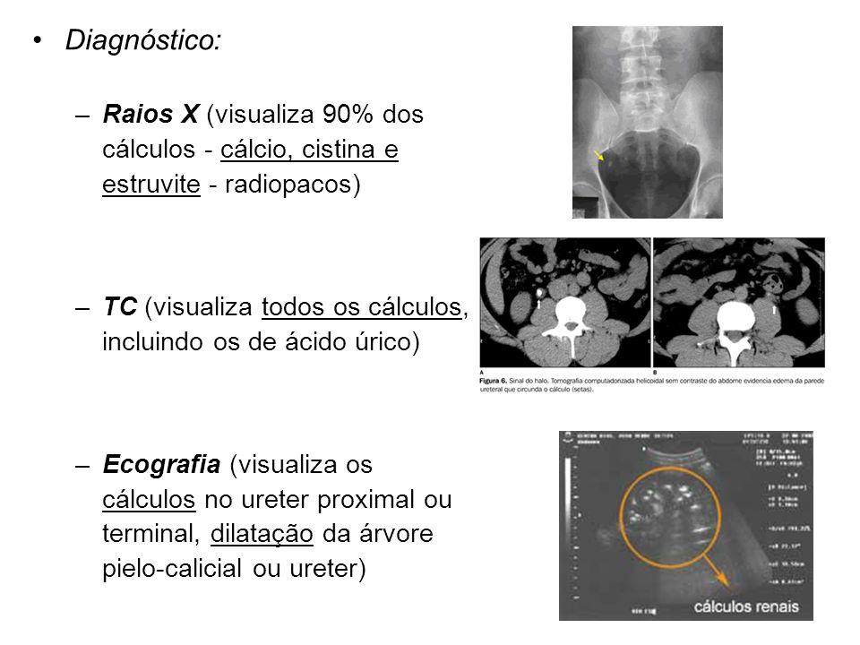 Diagnóstico: Raios X (visualiza 90% dos cálculos - cálcio, cistina e estruvite - radiopacos)