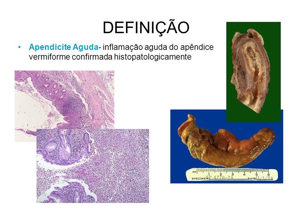 DEFINIÇÃO Apendicite Aguda- inflamação aguda do apêndice vermiforme confirmada histopatologicamente