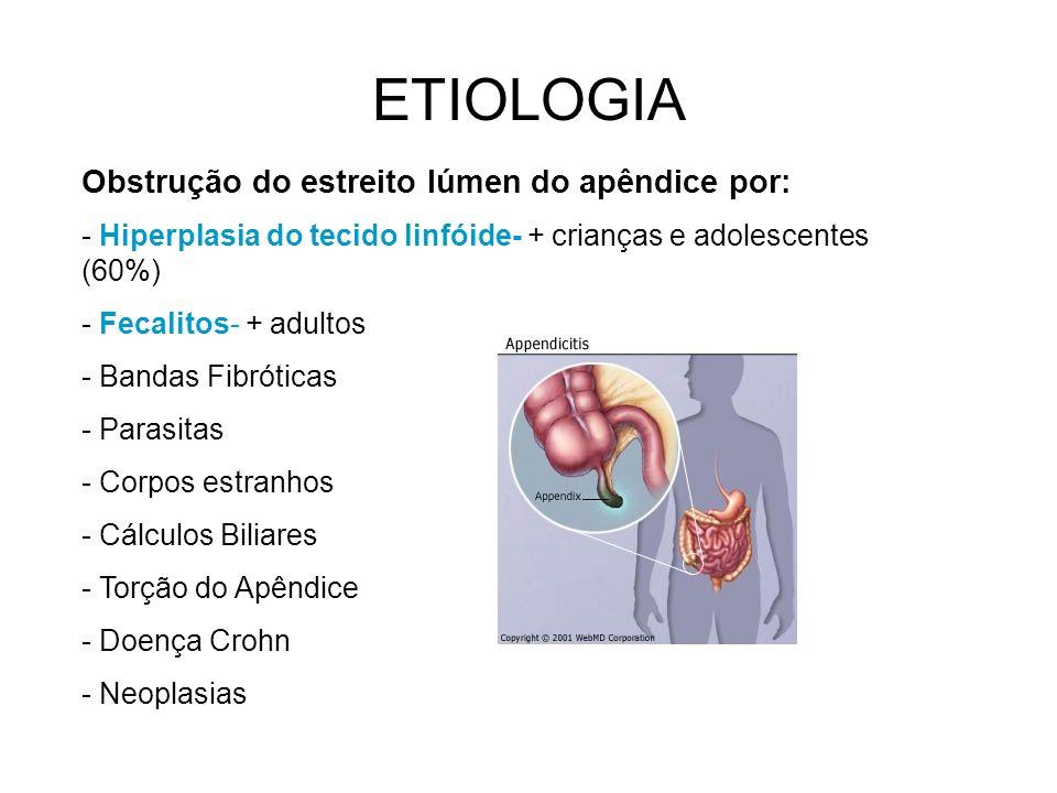 ETIOLOGIA Obstrução do estreito lúmen do apêndice por: