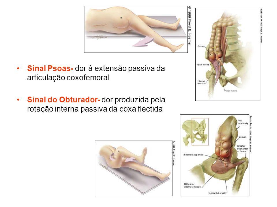 Sinal Psoas- dor à extensão passiva da articulação coxofemoral