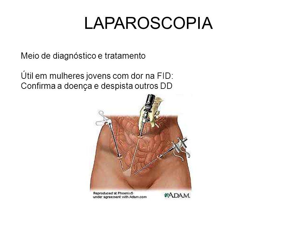 LAPAROSCOPIA Meio de diagnóstico e tratamento