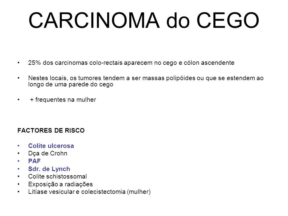 CARCINOMA do CEGO 25% dos carcinomas colo-rectais aparecem no cego e cólon ascendente.