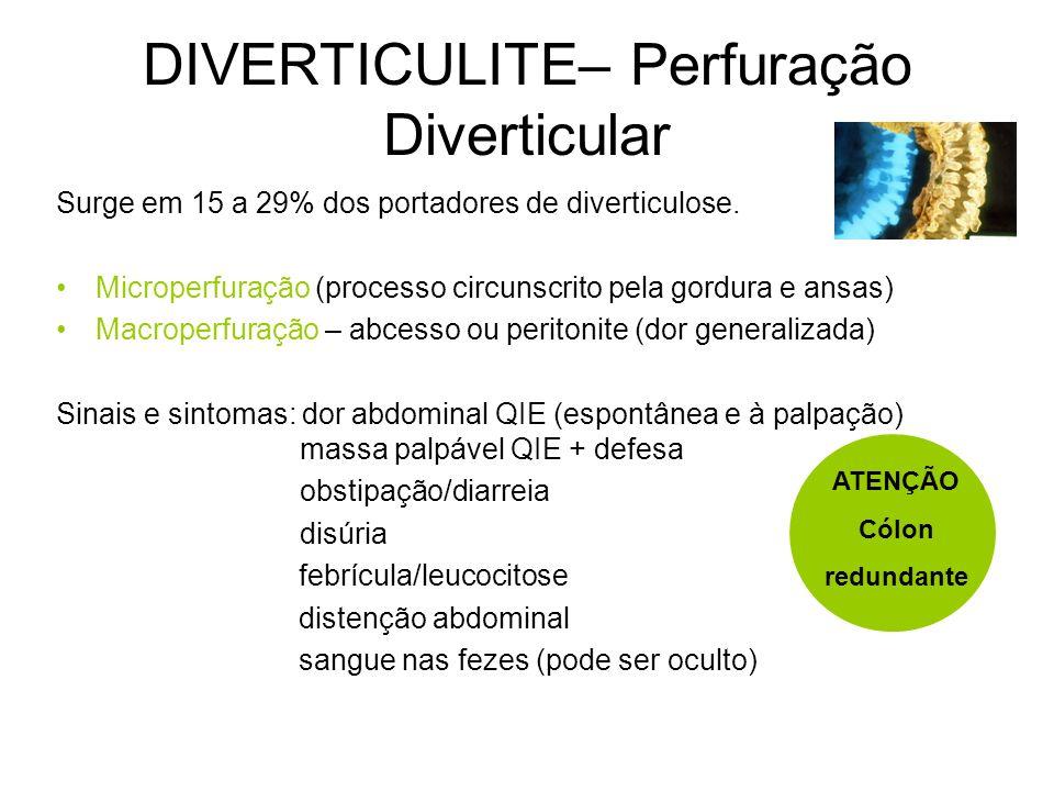 DIVERTICULITE– Perfuração Diverticular