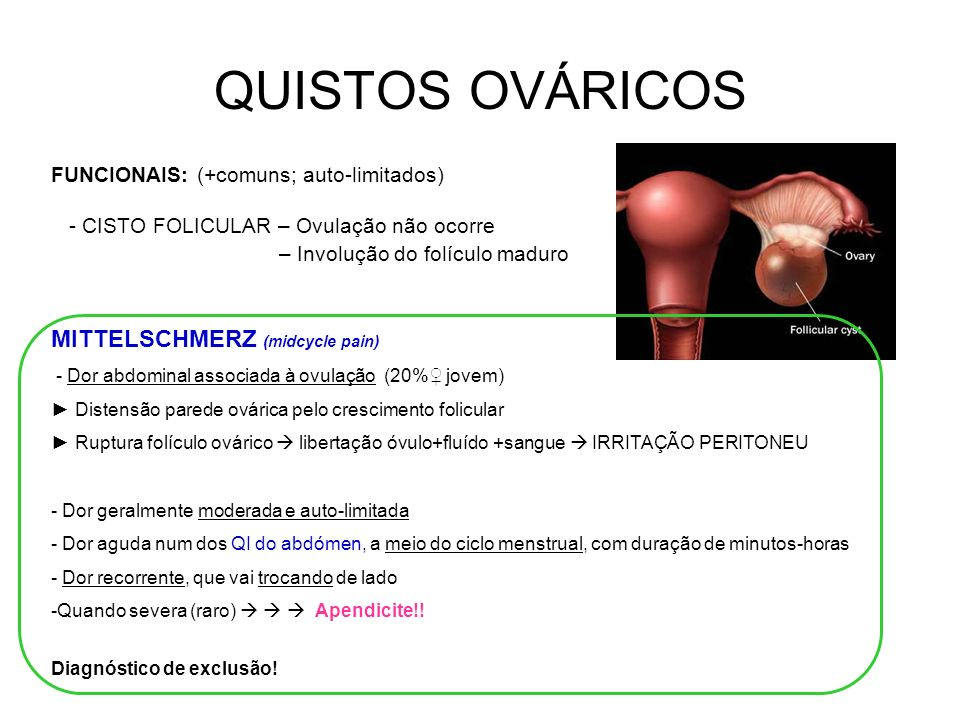 QUISTOS OVÁRICOS MITTELSCHMERZ (midcycle pain)