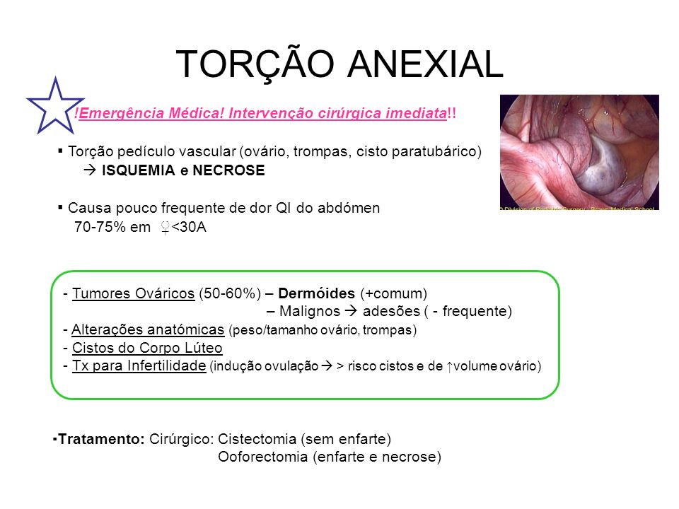 TORÇÃO ANEXIAL !Emergência Médica! Intervenção cirúrgica imediata!! ▪ Torção pedículo vascular (ovário, trompas, cisto paratubárico)