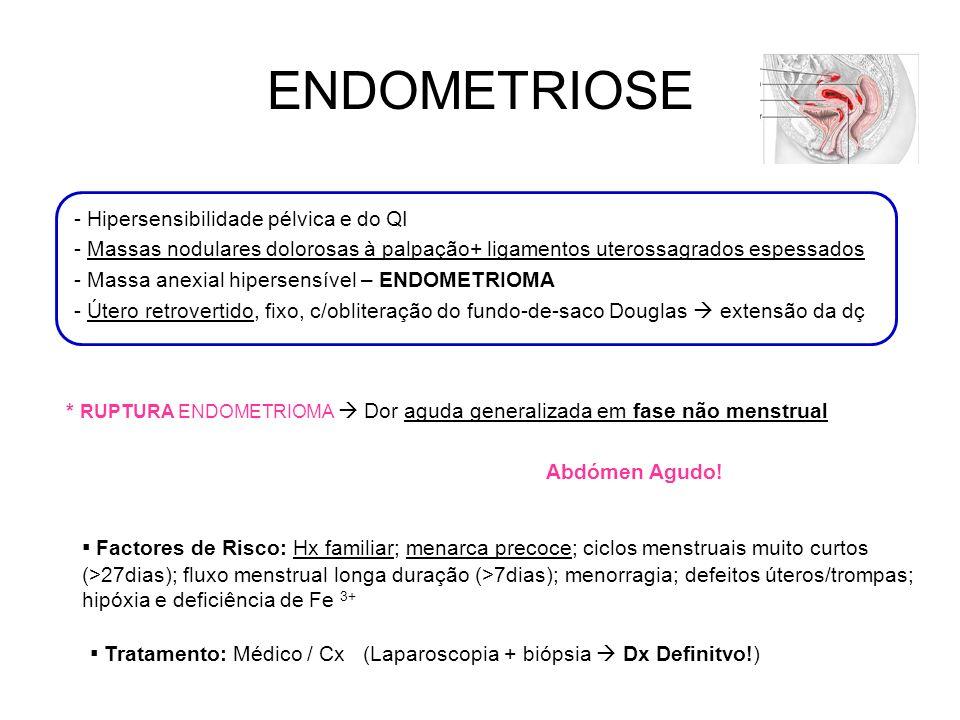 ENDOMETRIOSE - Hipersensibilidade pélvica e do QI. - Massas nodulares dolorosas à palpação+ ligamentos uterossagrados espessados.