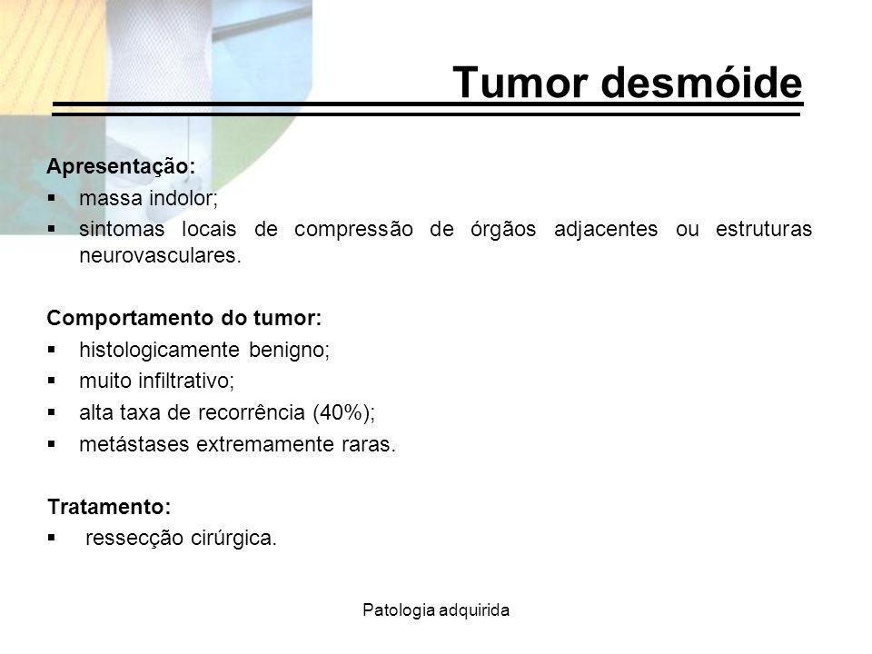 Tumor desmóide Apresentação: massa indolor;