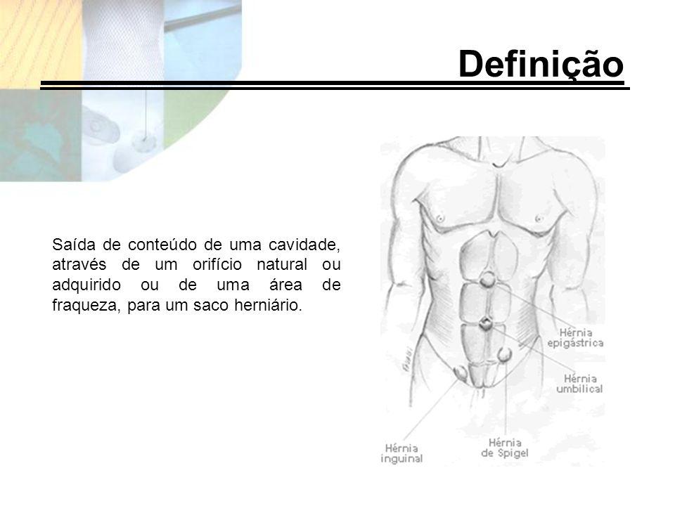 Definição Saída de conteúdo de uma cavidade, através de um orifício natural ou adquirido ou de uma área de fraqueza, para um saco herniário.
