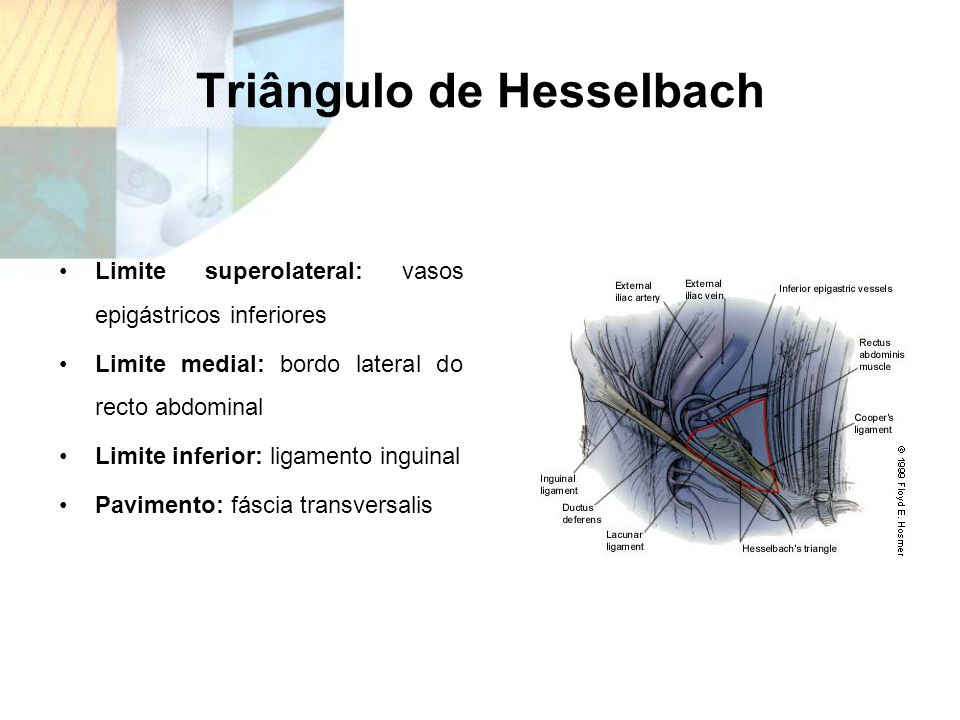 Triângulo de Hesselbach