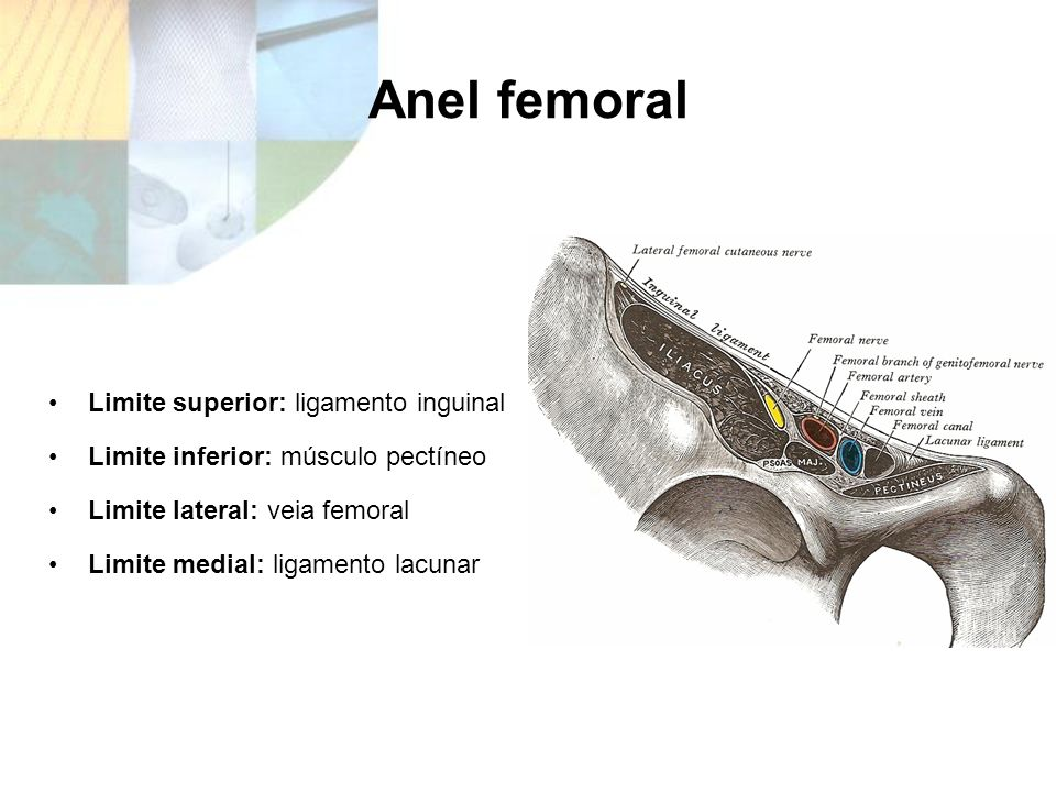Anel femoral Limite superior: ligamento inguinal
