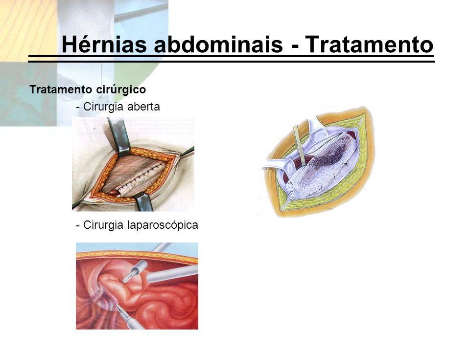 Hérnias abdominais - Tratamento