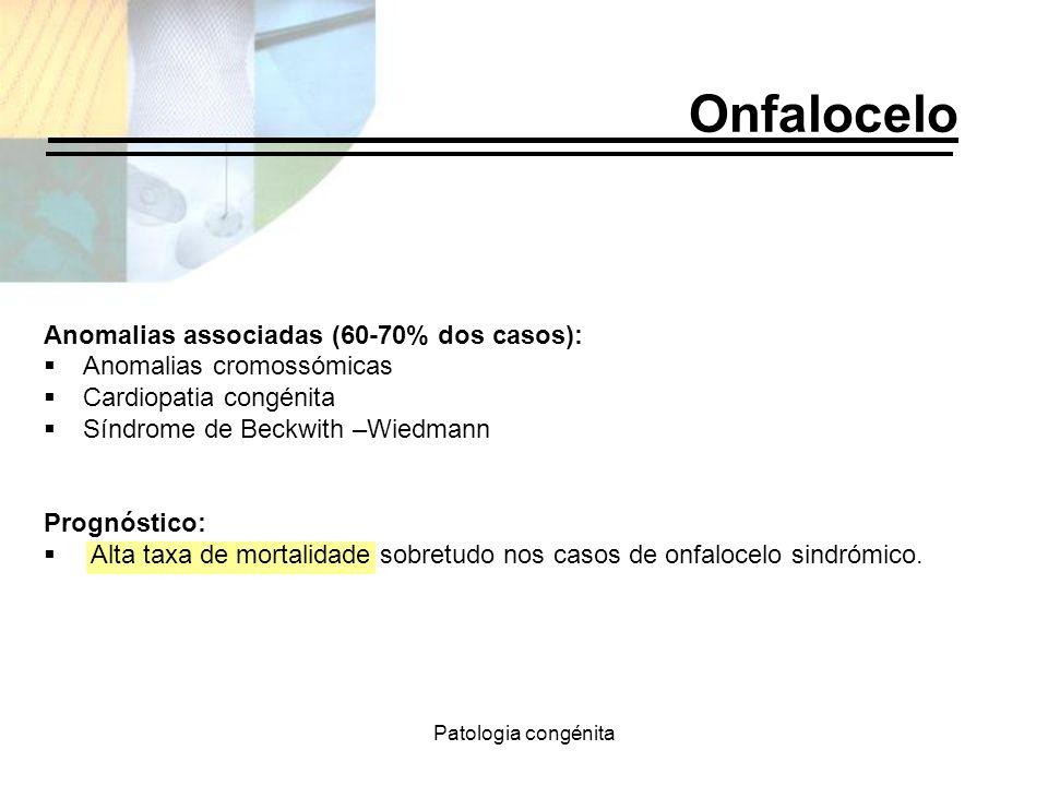 Onfalocelo Anomalias associadas (60-70% dos casos):