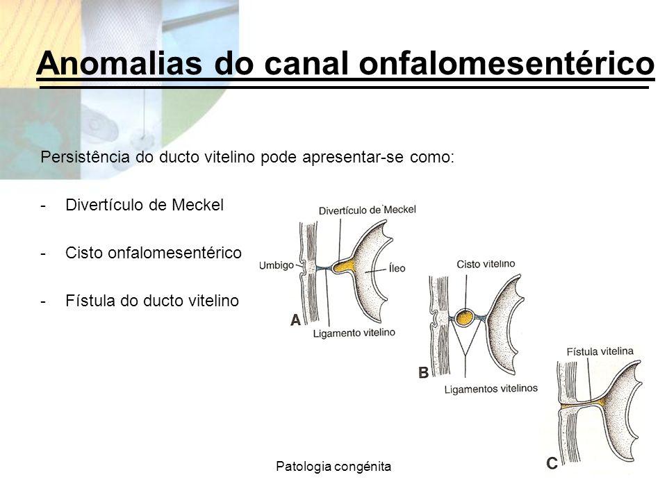 Anomalias do canal onfalomesentérico