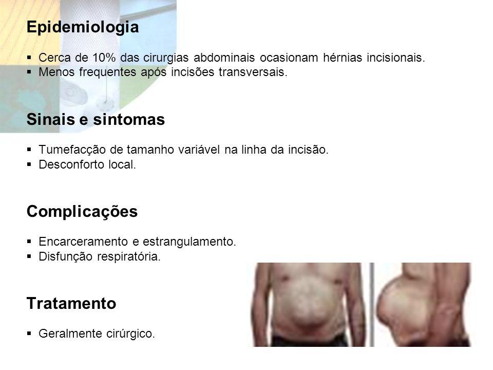 Epidemiologia Sinais e sintomas Complicações Tratamento