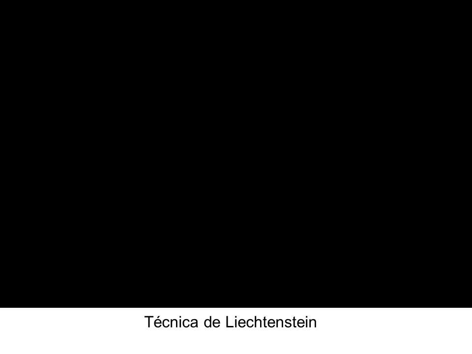 Técnica de Liechtenstein