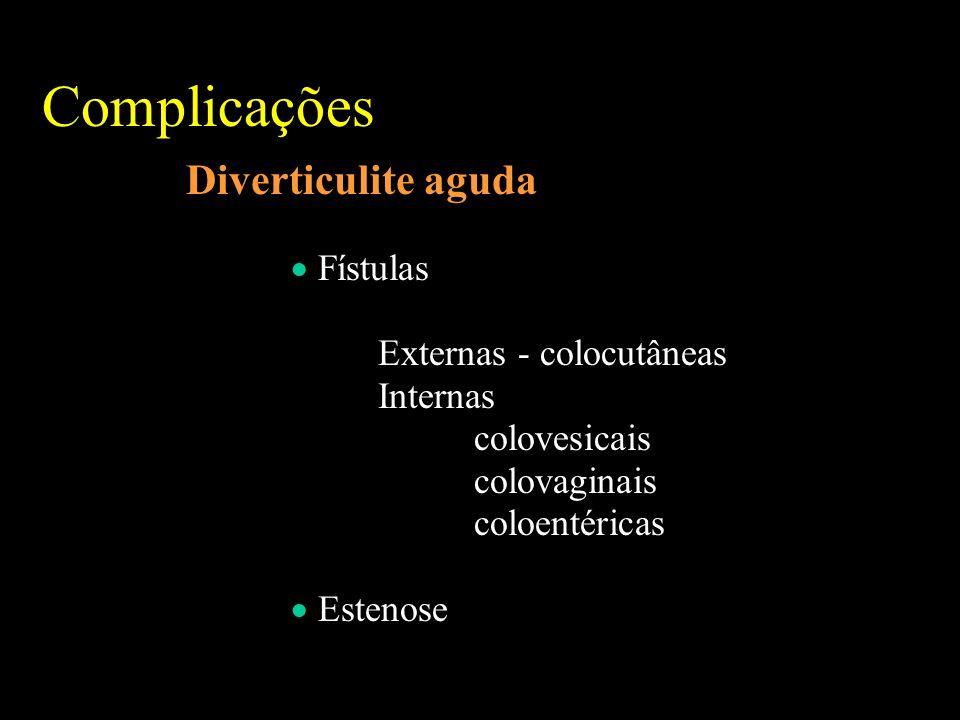 Complicações Diverticulite aguda  Fístulas Externas - colocutâneas