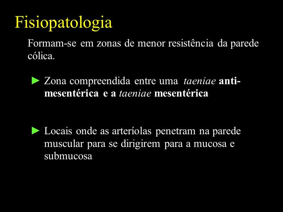 Fisiopatologia Formam-se em zonas de menor resistência da parede
