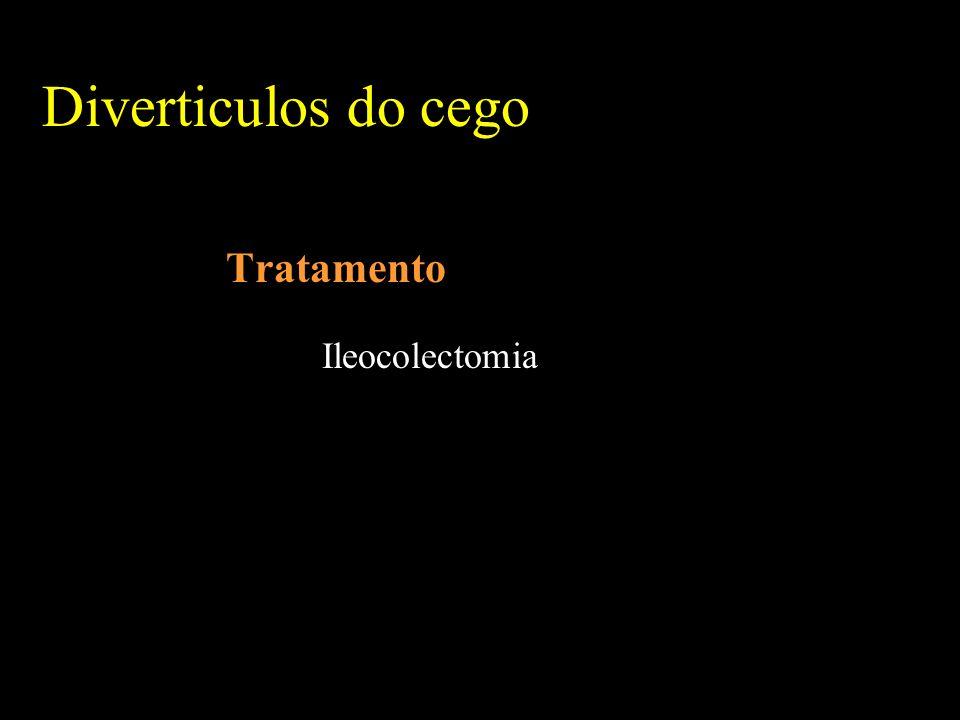 Tratamento Ileocolectomia