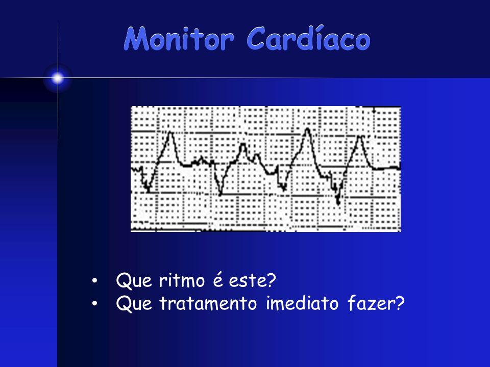 Monitor Cardíaco Que ritmo é este Que tratamento imediato fazer