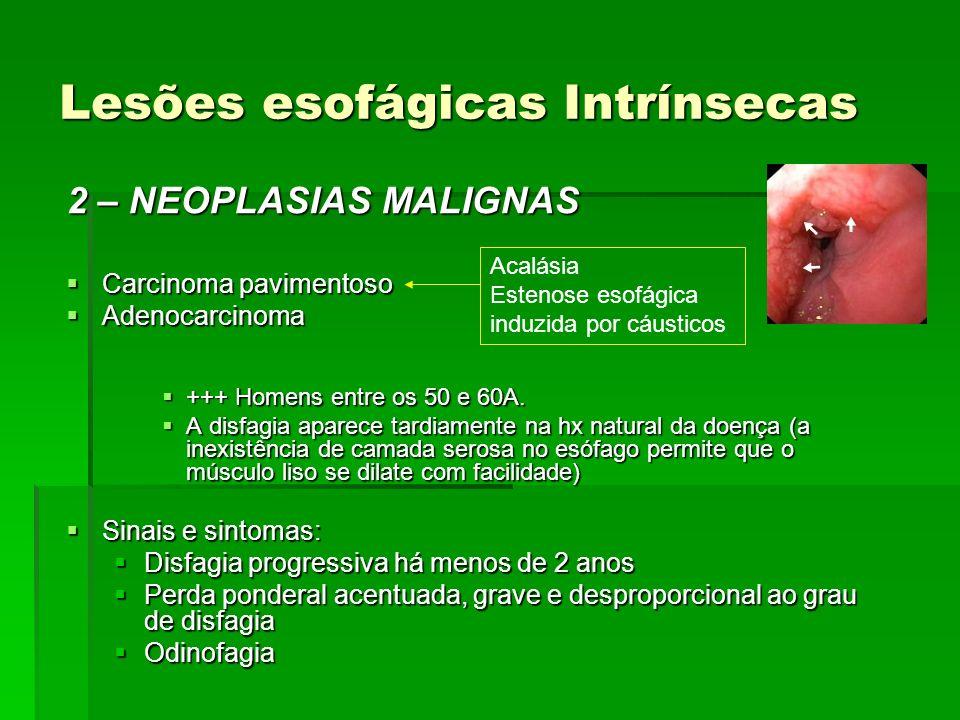 Lesões esofágicas Intrínsecas