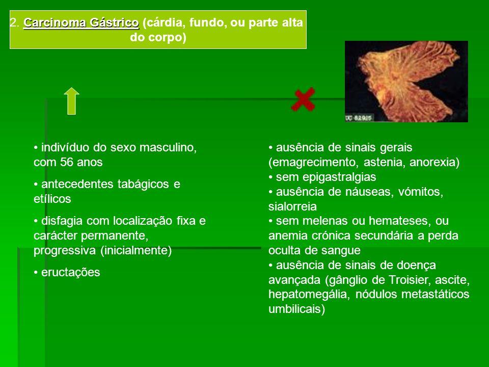 2. Carcinoma Gástrico (cárdia, fundo, ou parte alta