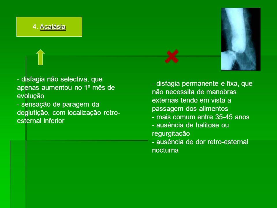 4. Acalásia
