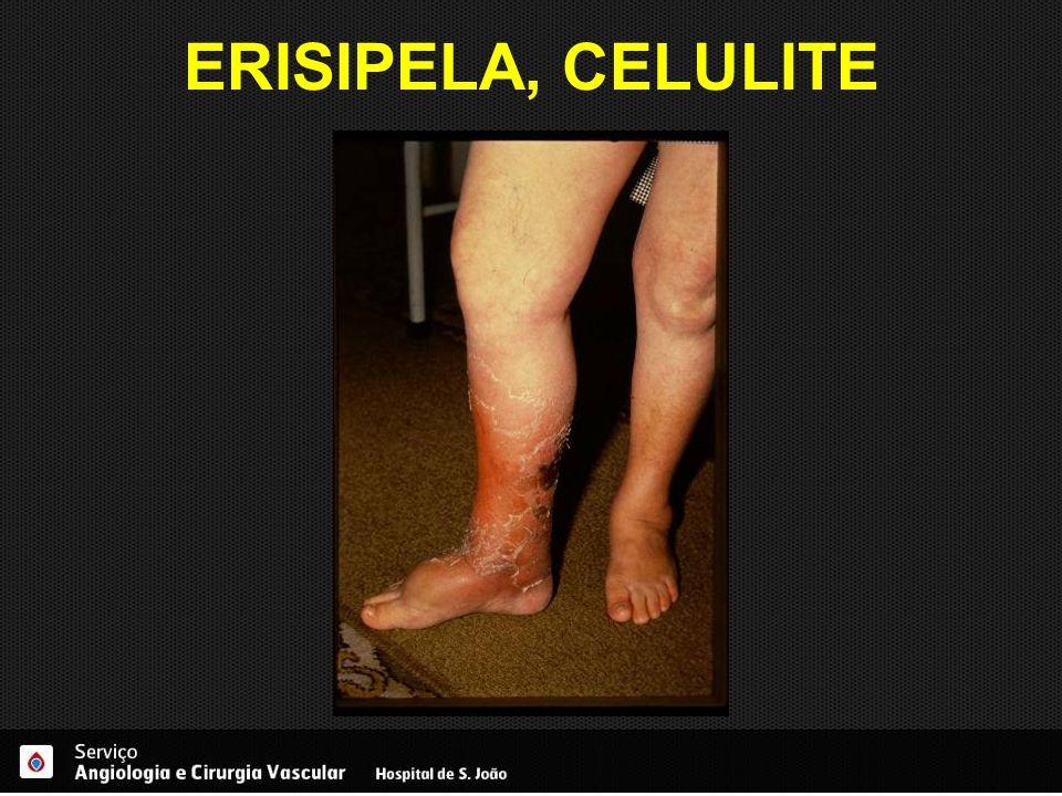 ERISIPELA, CELULITE
