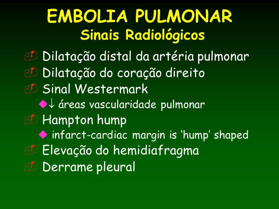 EMBOLIA PULMONAR Sinais Radiológicos