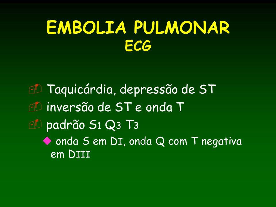 EMBOLIA PULMONAR ECG Taquicárdia, depressão de ST