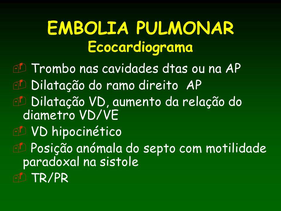 EMBOLIA PULMONAR Ecocardiograma