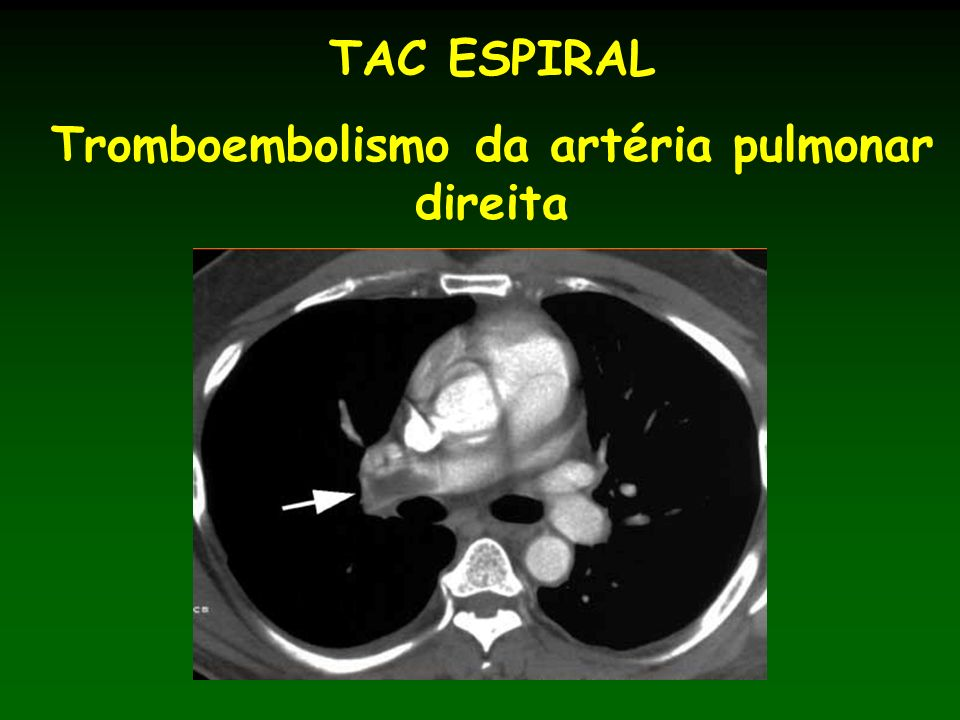 Tromboembolismo da artéria pulmonar direita