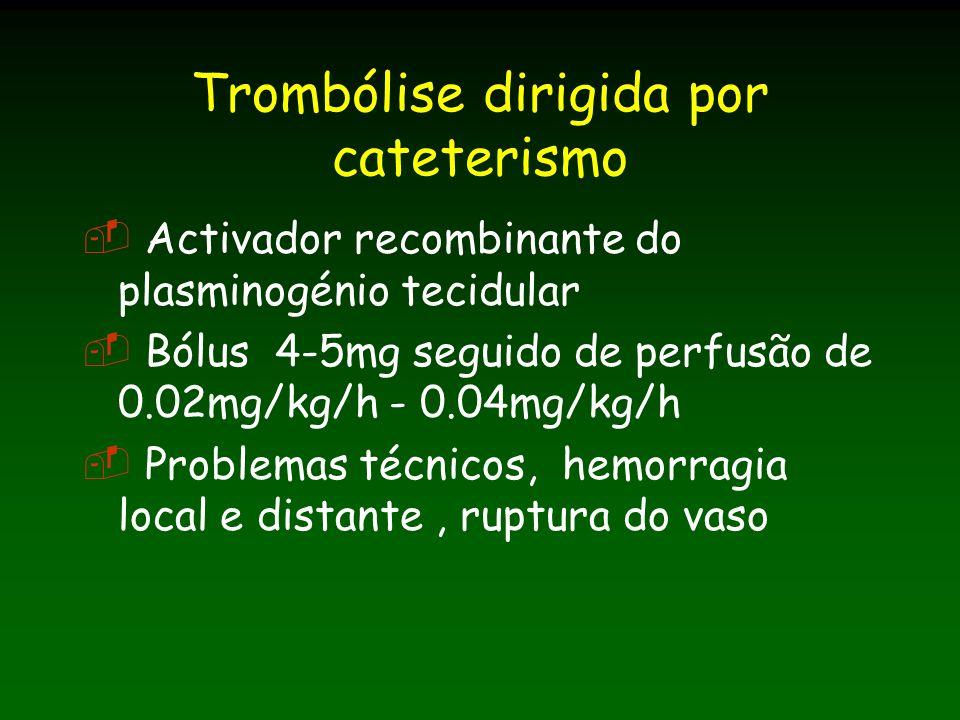 Trombólise dirigida por cateterismo
