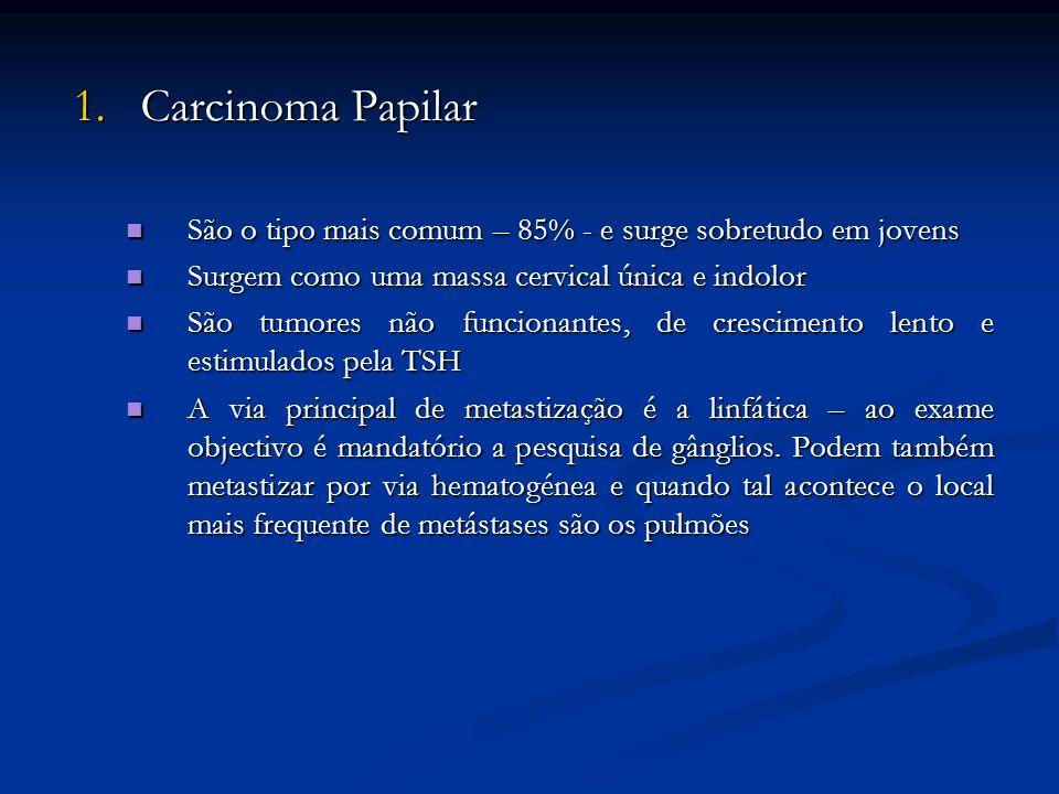 1. Carcinoma Papilar São o tipo mais comum – 85% - e surge sobretudo em jovens. Surgem como uma massa cervical única e indolor.