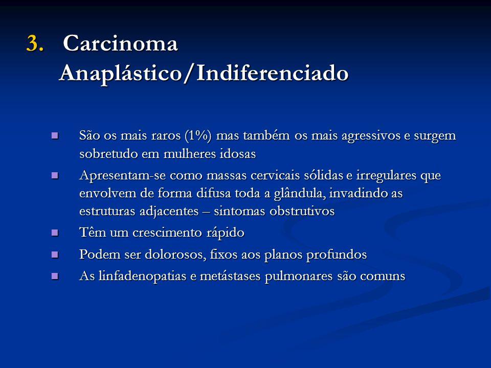 3. Carcinoma Anaplástico/Indiferenciado