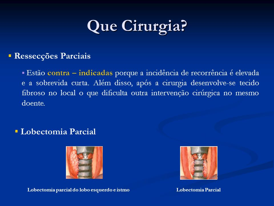 Que Cirurgia Ressecções Parciais Lobectomia Parcial