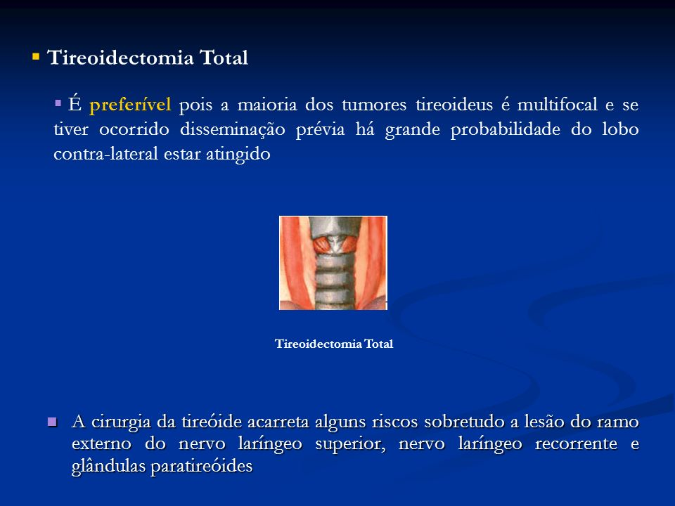 Tireoidectomia Total