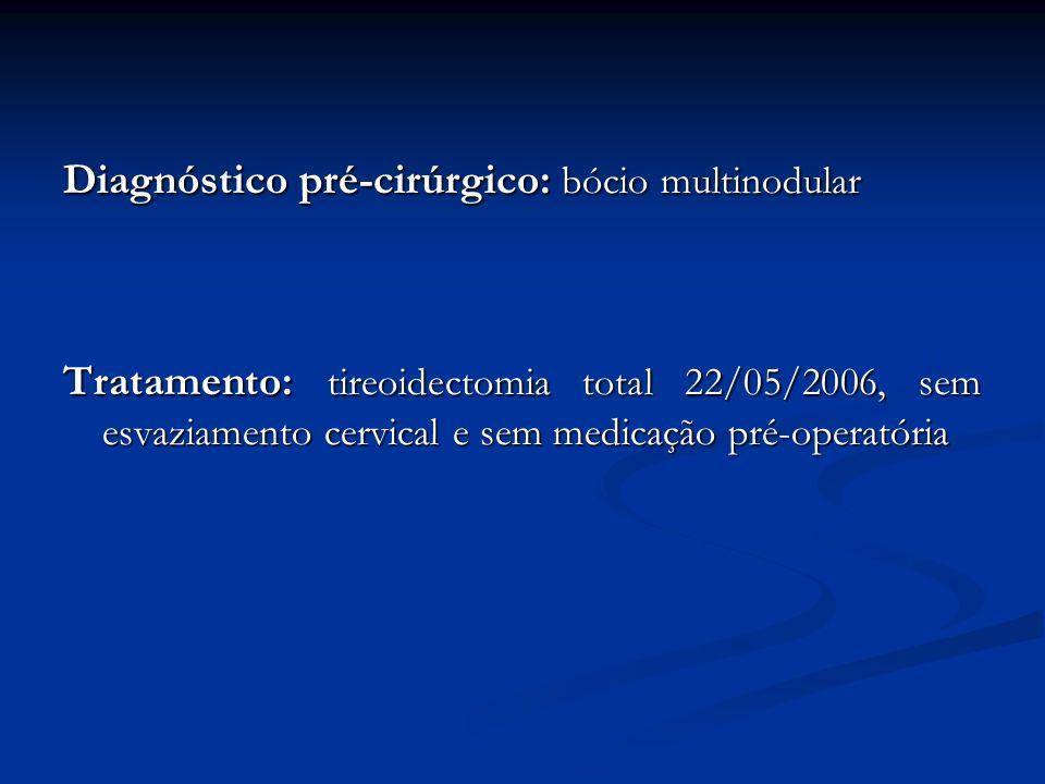 Diagnóstico pré-cirúrgico: bócio multinodular