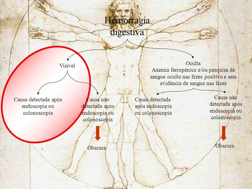 Hemorragia digestiva Oculta